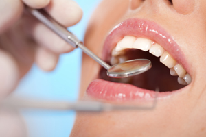 Dentist North Hollywood - SRPs Cleaning
