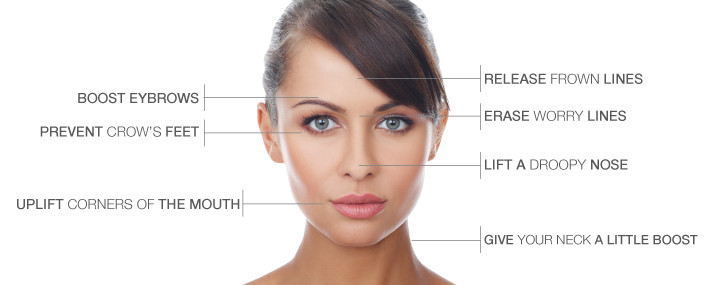 botox-treatment-areas