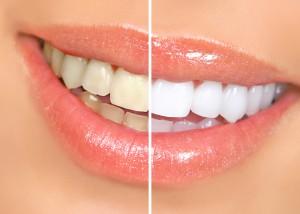 Dentist North Hollywood - Zoom Whitening