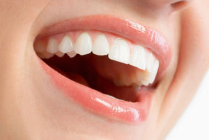 Dentist North Hollywood - Gum Reshaping