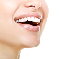 Dentist North Hollywood - Veneer Special