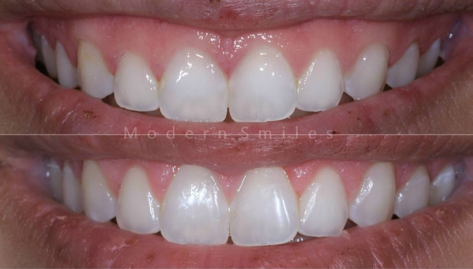 Gummy Smile Correction - Modern Smiles