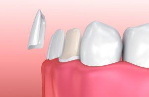 improving smiles with porcelain veneers