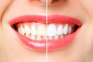 whiter teeth in one visit