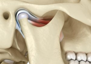 Find Relief with TMJ Treatment