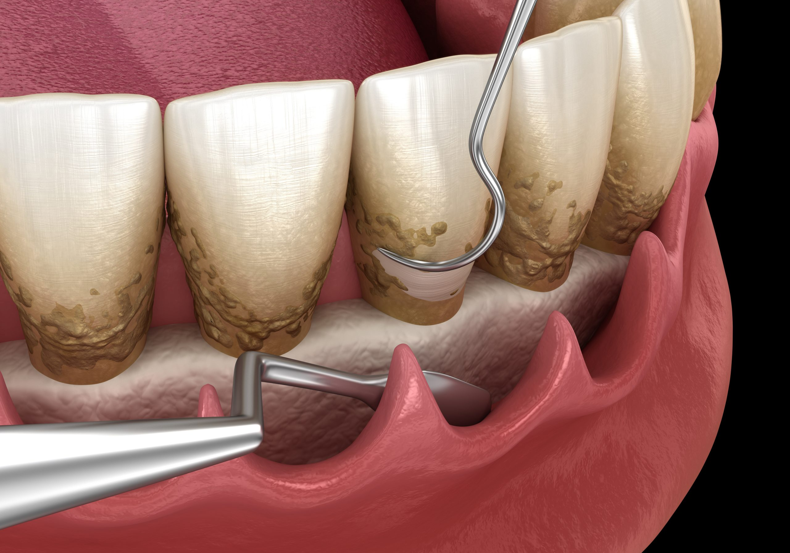 Open curettage: Scaling and root planing (conventional periodontal therapy). Medically accurate 3D illustration of human teeth treatment