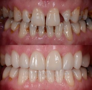 The natural-looking smile makeover with the dental ceramic veneer and crown