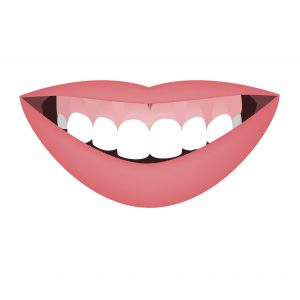 Mouth with a distal bite and high smile line or gummy smile before the orthotropics or orthotropics treatment. Vertical face growth abnormality. Vector illustration.