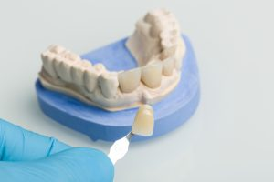 Using a shade guide to check veneer of denture parts in a dental laboratory