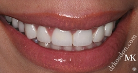 Dentist North Hollywood - Modern Veneers